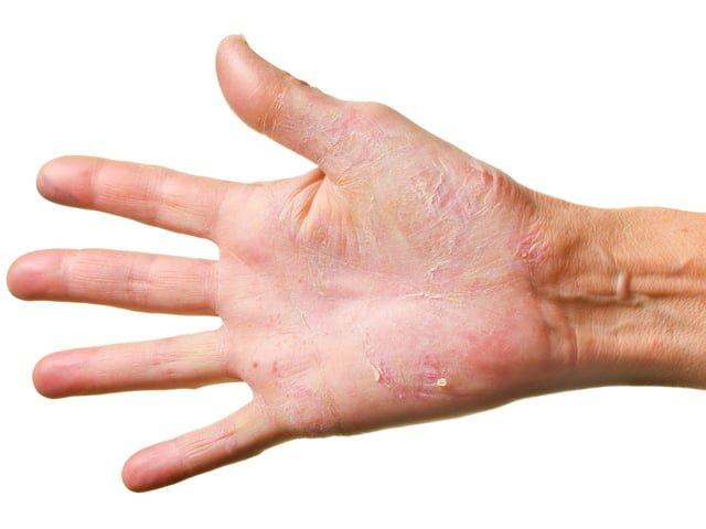 сухая и поврежденная кожа